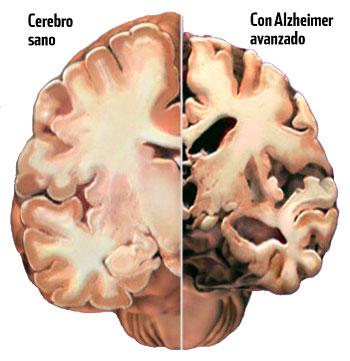 Se crea en Motril la Asociación de Familiares de Alzheimer